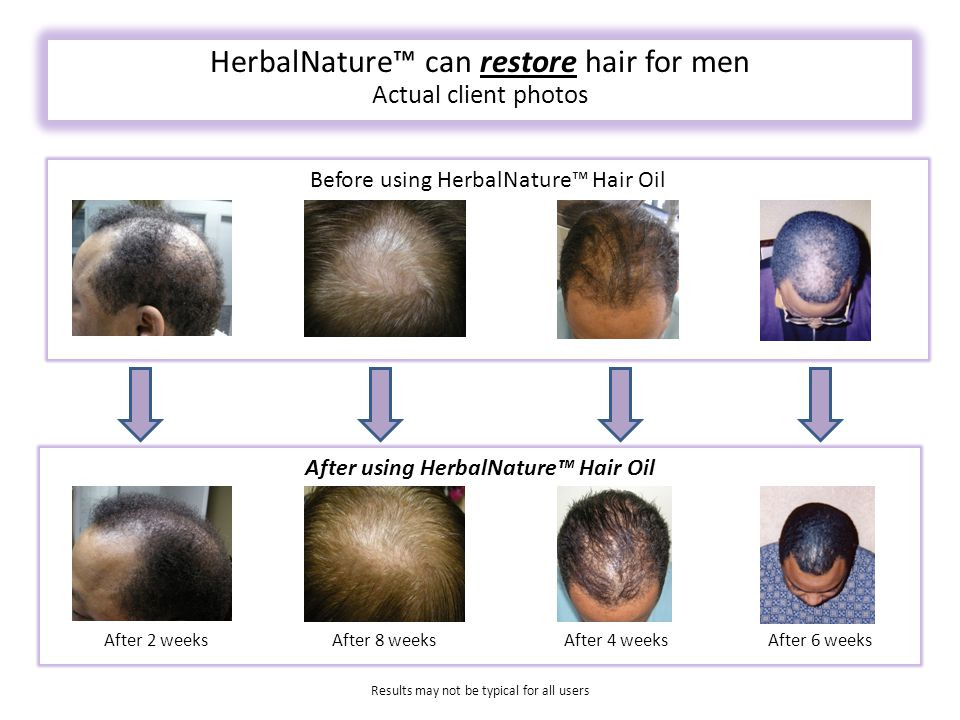 After using HerbalNature™ Hair Oil Before using HerbalNature™ Hair Oil HerbalNature™ can restore hair for men Actual client photos After 2 weeksAfter 8 weeksAfter 4 weeksAfter 6 weeks Results may not be typical for all users