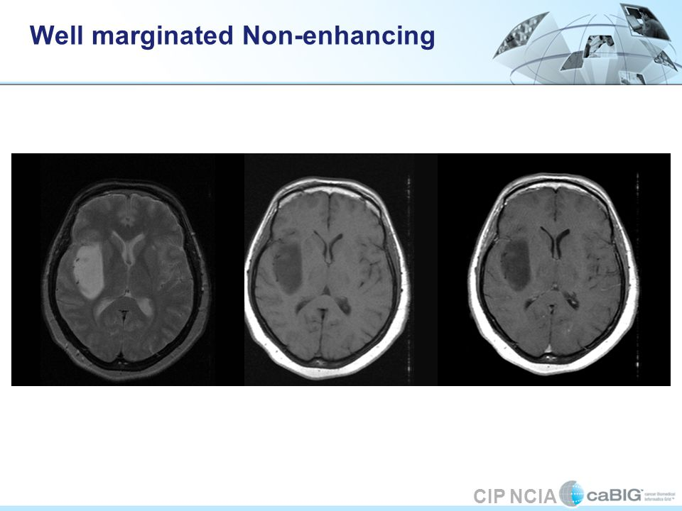 CIP NCIA Well marginated Non-enhancing
