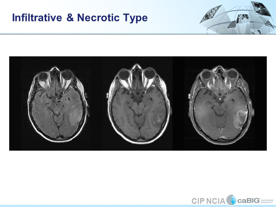 CIP NCIA Infiltrative & Necrotic Type