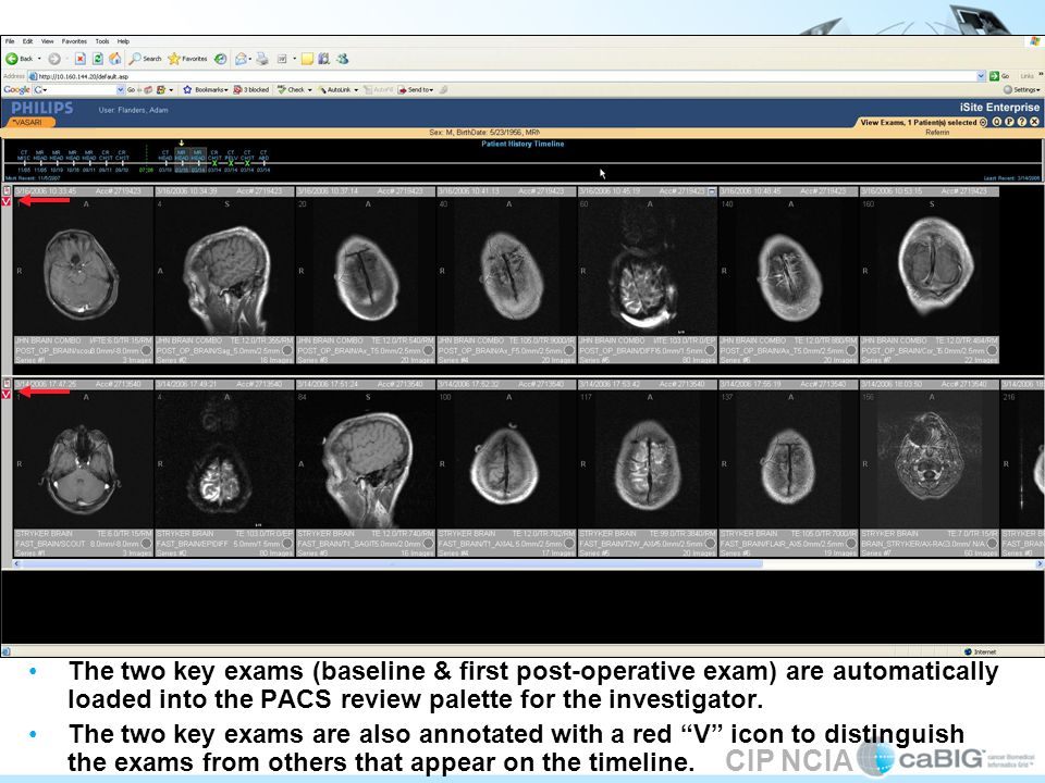 CIP NCIA The two key exams (baseline & first post-operative exam) are automatically loaded into the PACS review palette for the investigator.