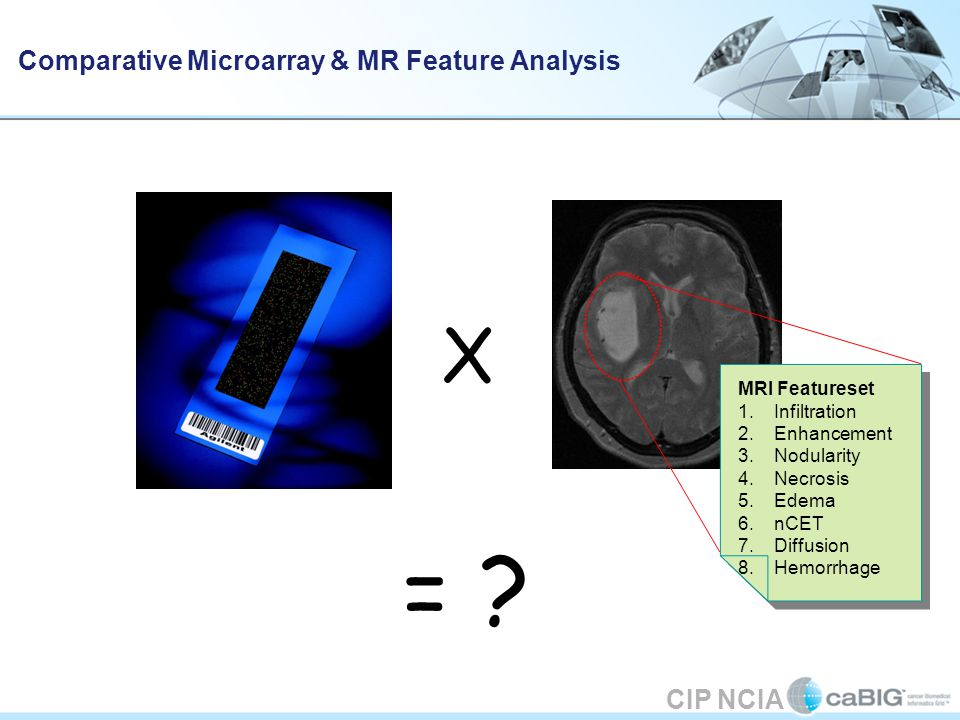 CIP NCIA Initial Vasari Plan Three components: Data collection Imaging through NCIA Tissue repository and analysis through Rembrandt.