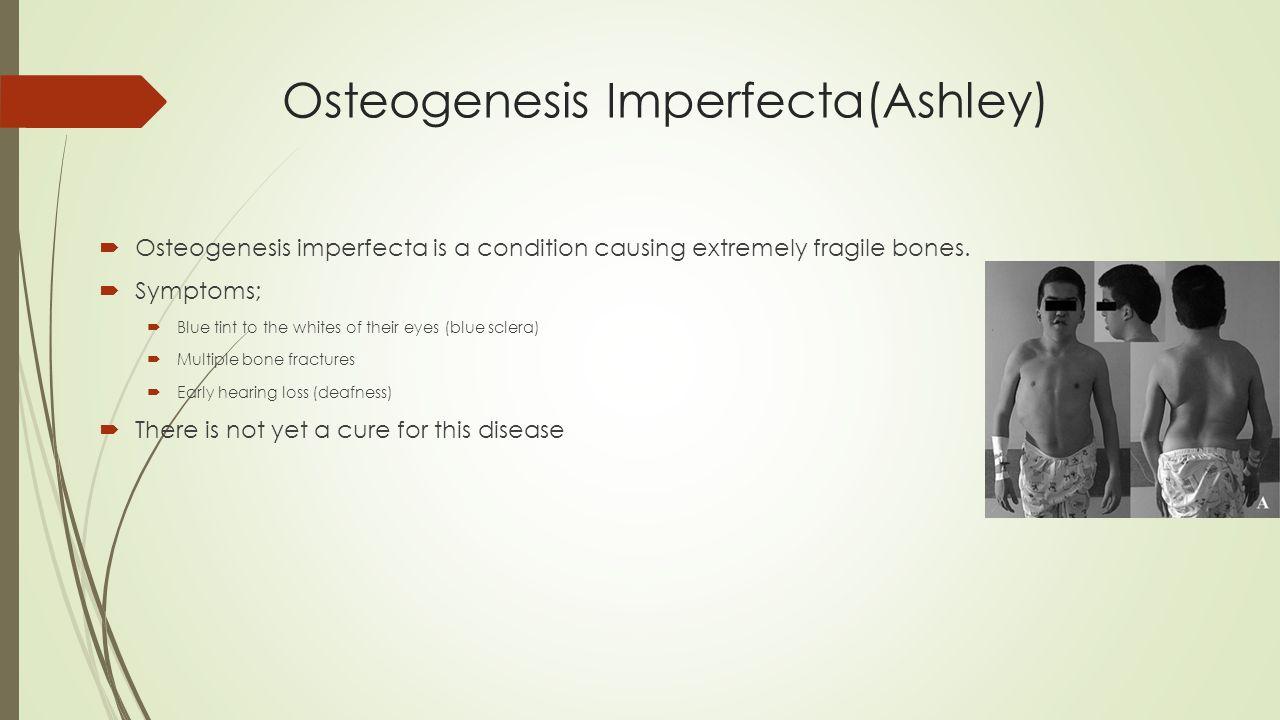 Osteogenesis Imperfecta(Ashley)  Osteogenesis imperfecta is a condition causing extremely fragile bones.