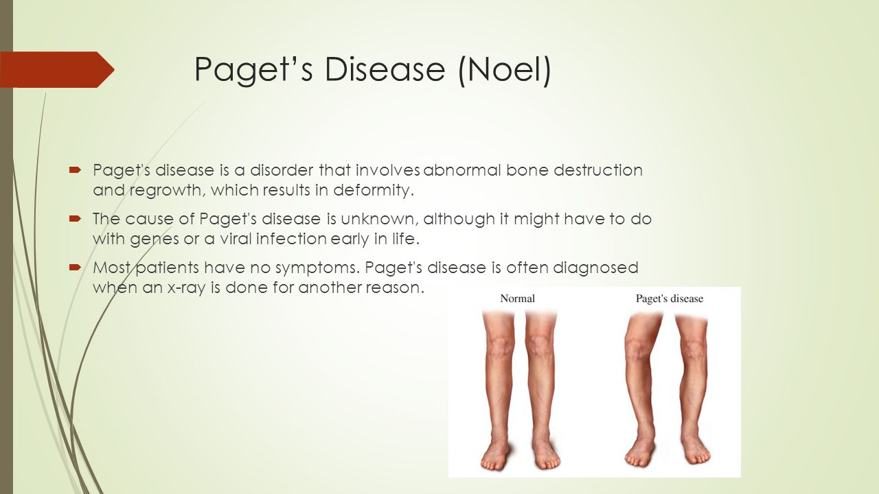 Paget's Disease (Noel)  Paget's disease is a disorder that involves abnormal bone destruction and regrowth, which results in deformity.  The cause o