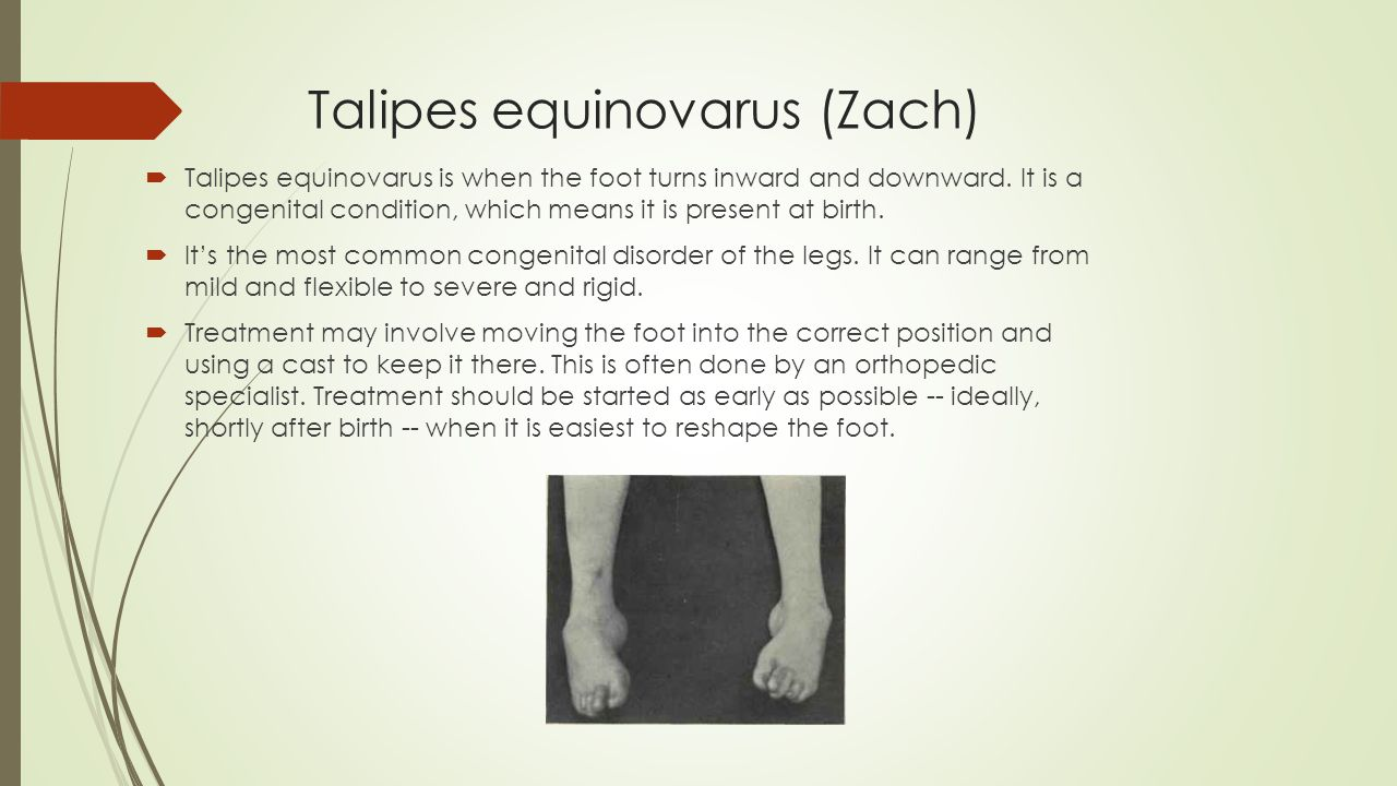 Talipes equinovarus (Zach)  Talipes equinovarus is when the foot turns inward and downward.