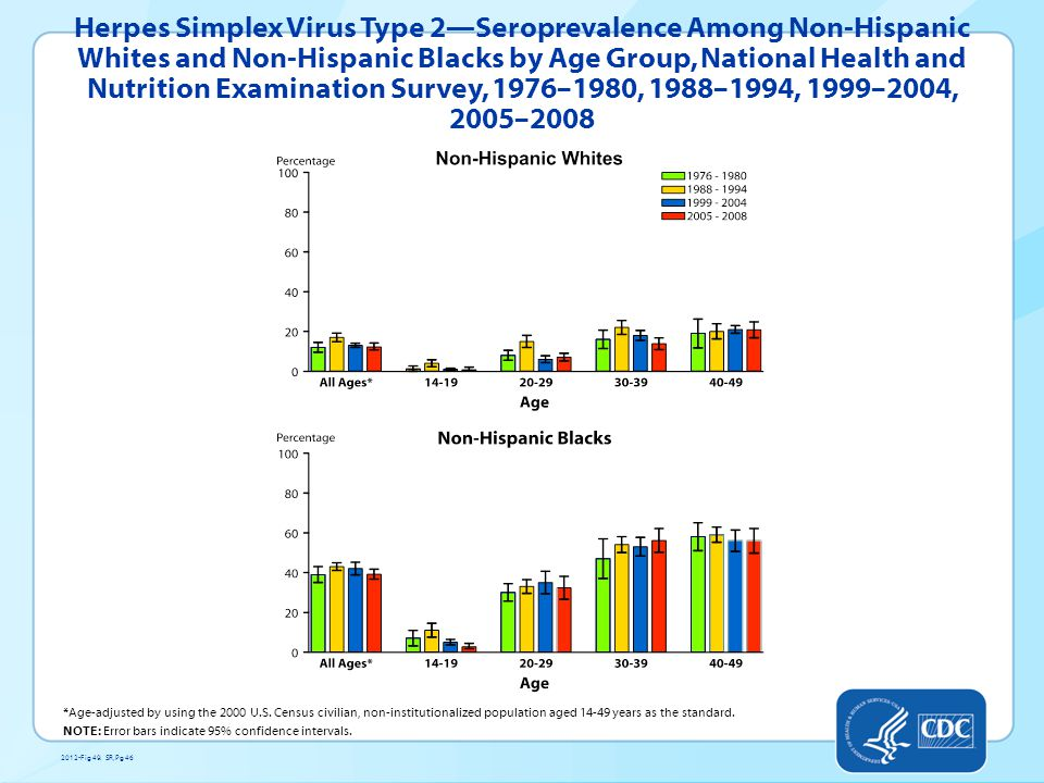 Herpes Simplex Virus Type 2—Seroprevalence Among Non-Hispanic Whites and Non-Hispanic Blacks by Age Group, National Health and Nutrition Examination Survey, 1976–1980, 1988–1994, 1999–2004, 2005–2008 *Age-adjusted by using the 2000 U.S.