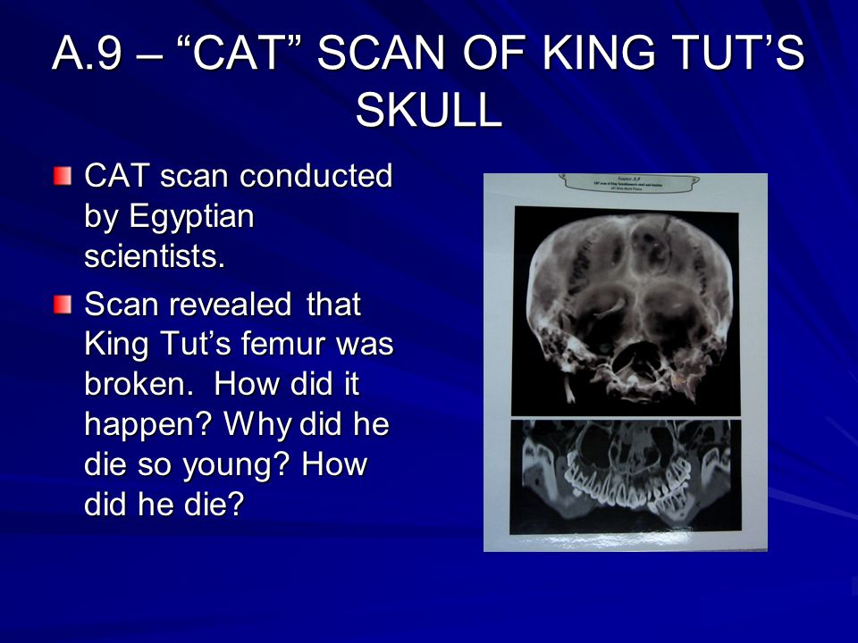 """A.9 – """"CAT"""" SCAN OF KING TUT'S SKULL CAT scan conducted by Egyptian scientists. Scan revealed that King Tut's femur was broken. How did it happen? Why"""