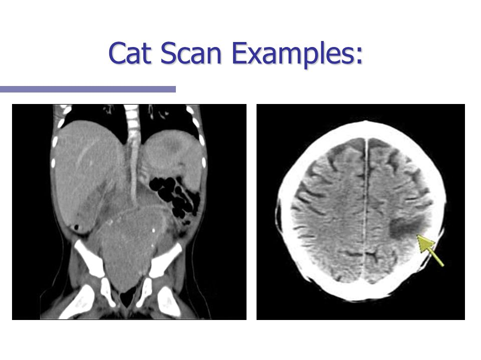 Cat Scan Examples: