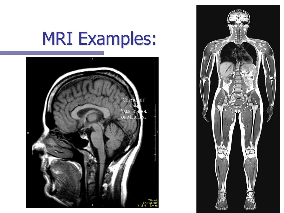 MRI Examples: