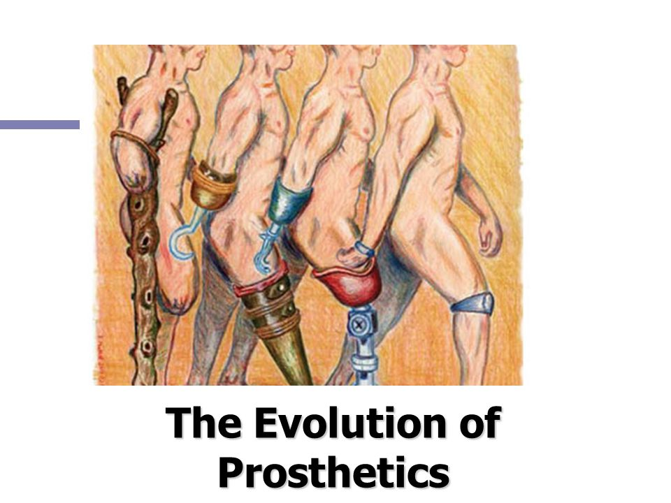 The Evolution of Prosthetics