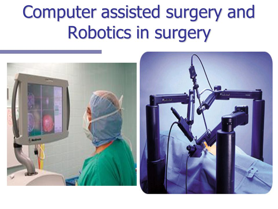 Computer assisted surgery and Robotics in surgery