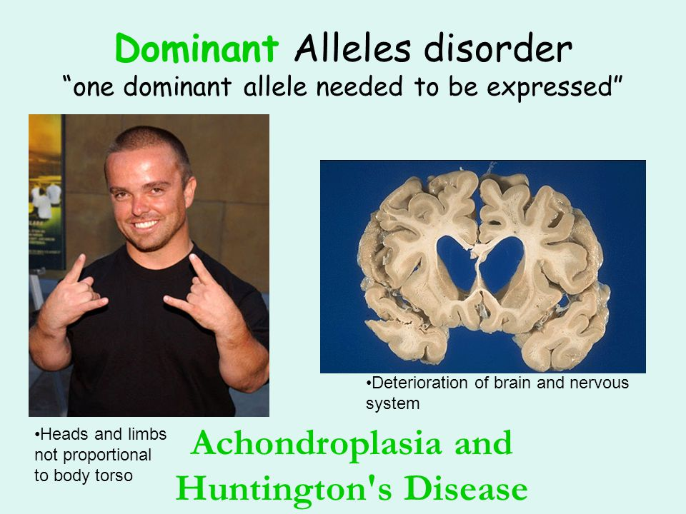 """Dominant Alleles disorder """"one dominant allele needed to be expressed"""" Achondroplasia and Huntington's Disease Heads and limbs not proportional to bod"""