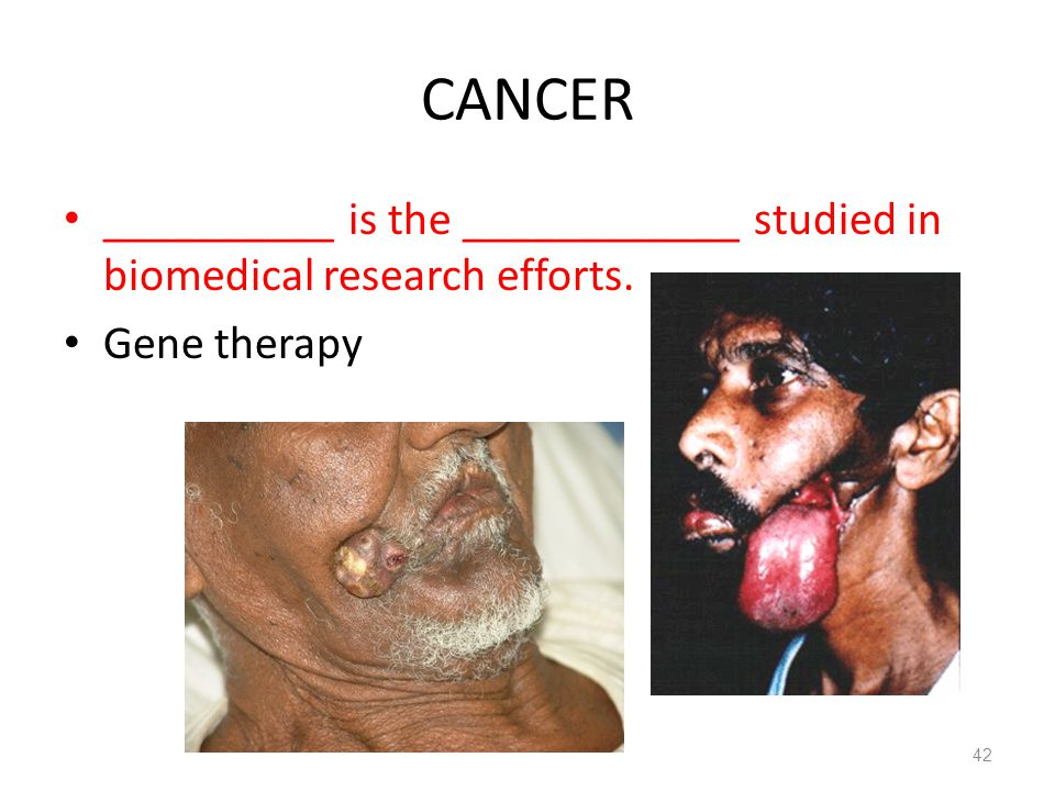 CANCER __________ is the ____________ studied in biomedical research efforts. Gene therapy 42