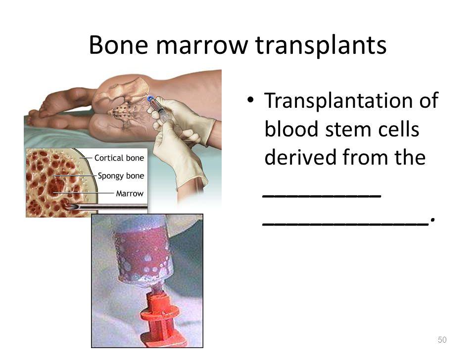 Bone marrow transplants Transplantation of blood stem cells derived from the __________ ______________.