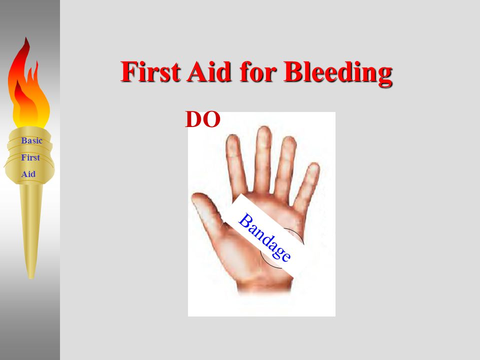 Basic First Aid First Aid for Bleeding 16 Use GLOVES Cover Wound Apply Pressure -f or 5 minutes Call 911 if severe Elevate –injured part