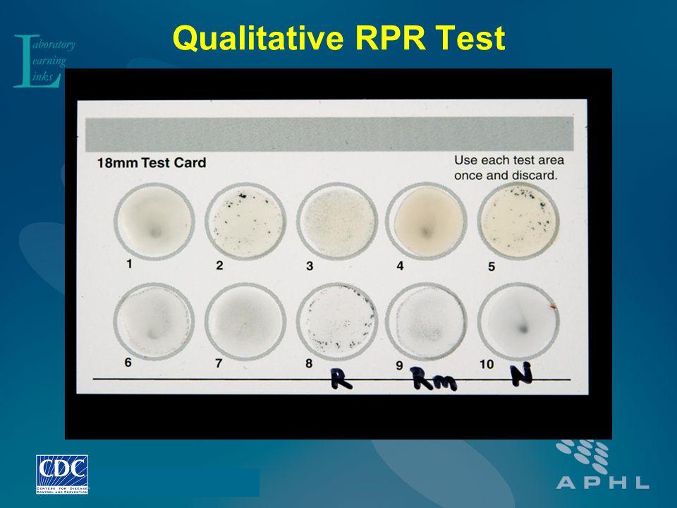 Qualitative RPR Test