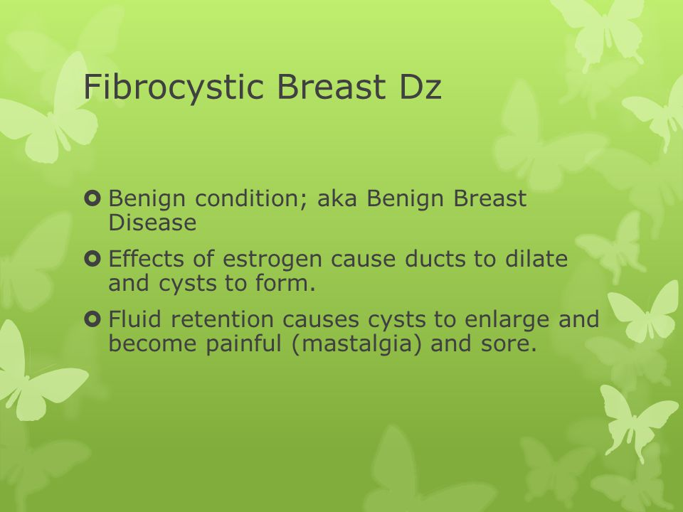 Fibrocystic Breast Dz  Benign condition; aka Benign Breast Disease  Effects of estrogen cause ducts to dilate and cysts to form.