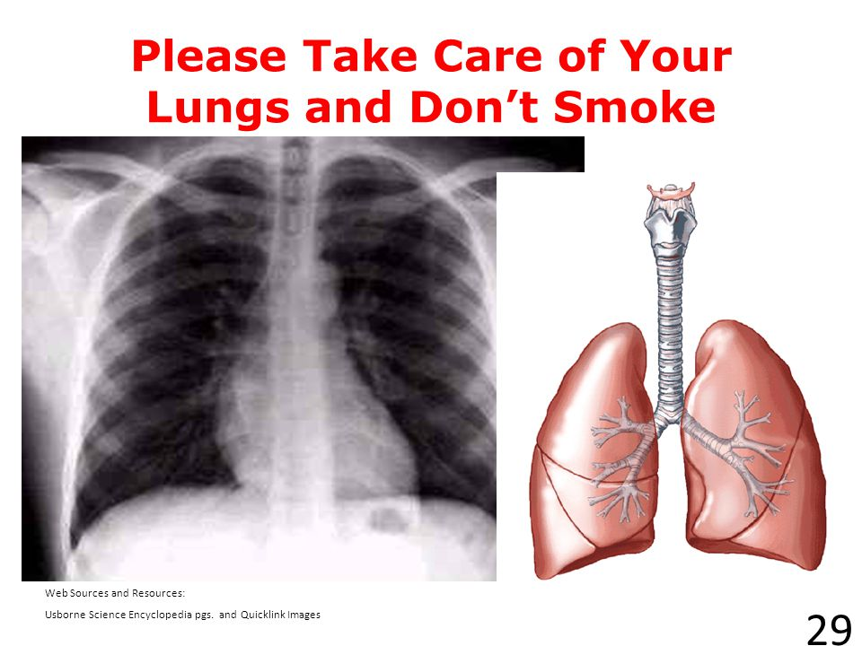 X-Rays can help detect lung cancer. Surgery, radiation, and drugs (chemotherapy) are some treatments for the disease. 28 Web Sources and Resources www
