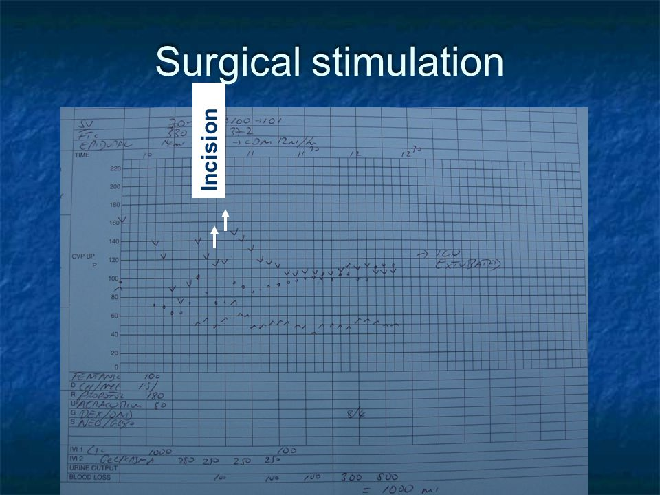 Surgical stimulation Incision