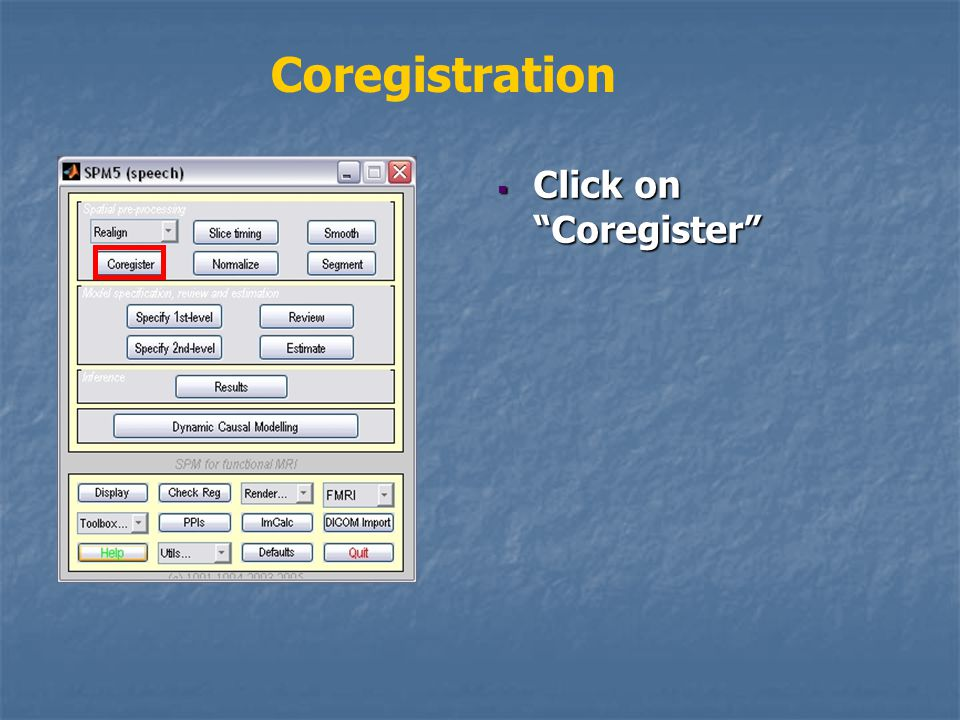 Coregistration  Click on Coregister