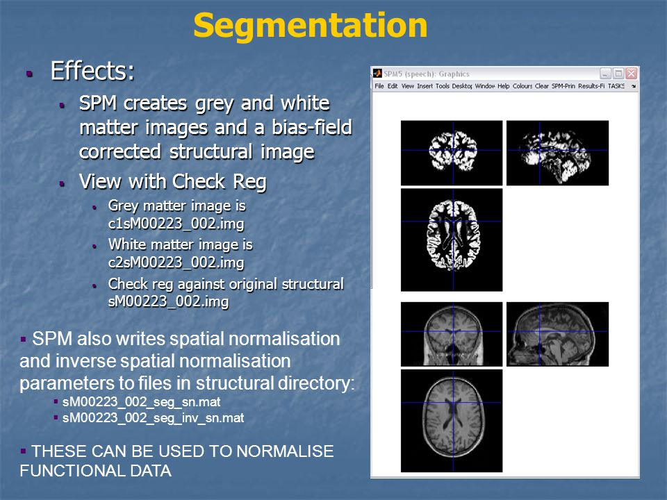  Effects:  SPM creates grey and white matter images and a bias-field corrected structural image  View with Check Reg  Grey matter image is c1sM00223_002.img  White matter image is c2sM00223_002.img  Check reg against original structural sM00223_002.img Segmentation  SPM also writes spatial normalisation and inverse spatial normalisation parameters to files in structural directory:  sM00223_002_seg_sn.mat  sM00223_002_seg_inv_sn.mat  THESE CAN BE USED TO NORMALISE FUNCTIONAL DATA Grey matter image Original structural image