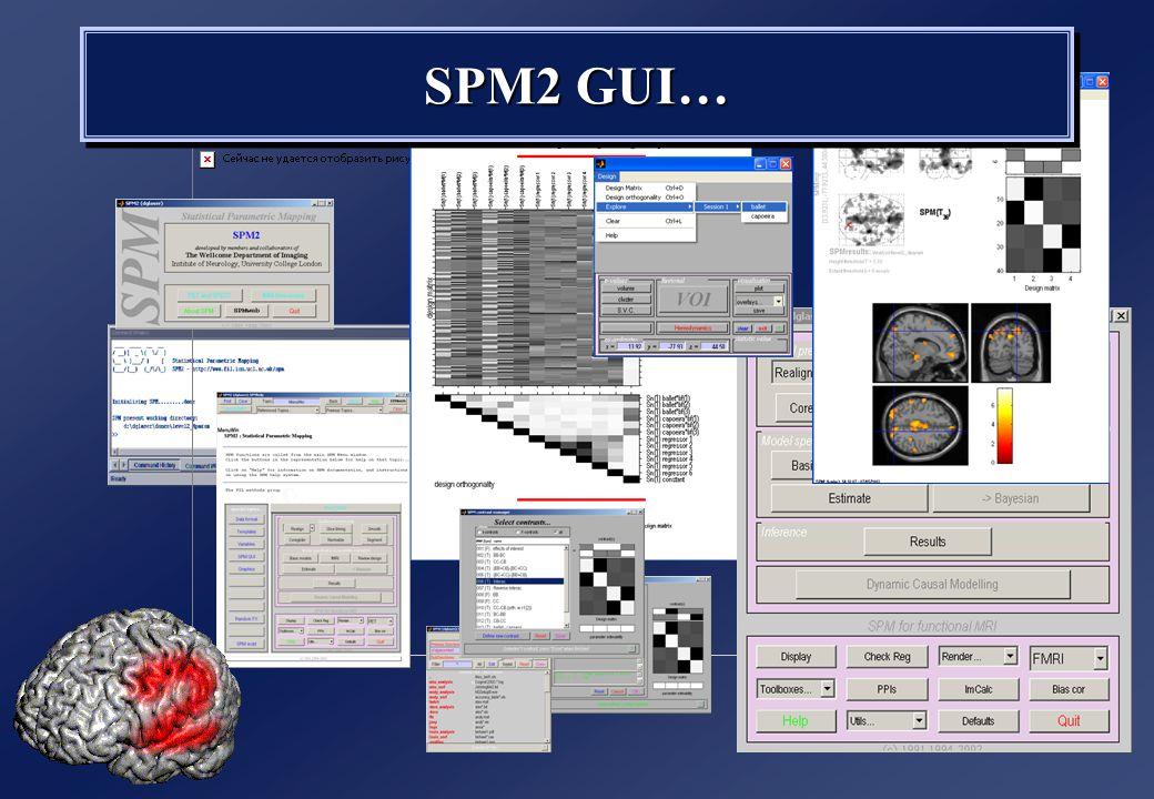 SPM2 GUI…