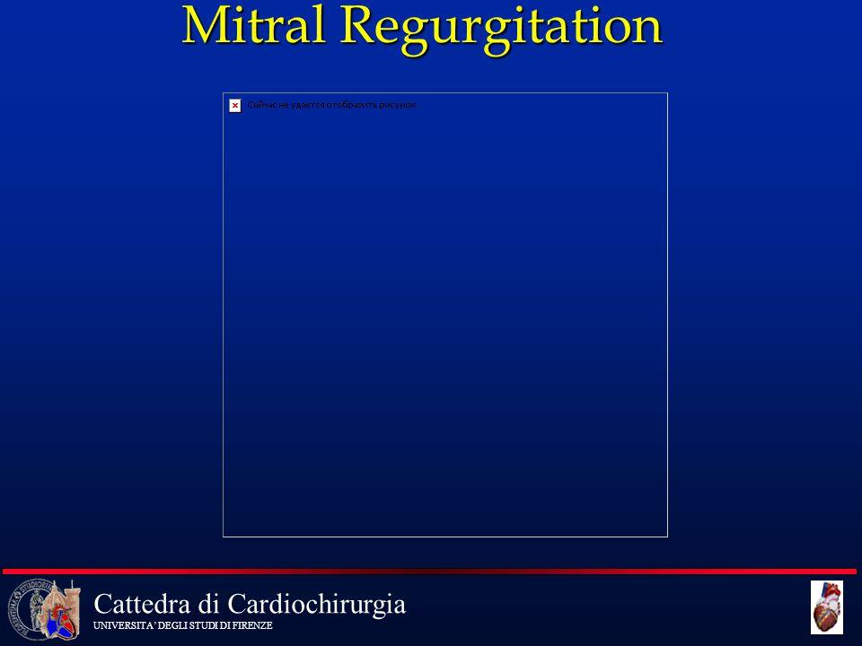 Cattedra di Cardiochirurgia UNIVERSITA' DEGLI STUDI DI FIRENZE Mitral Regurgitation