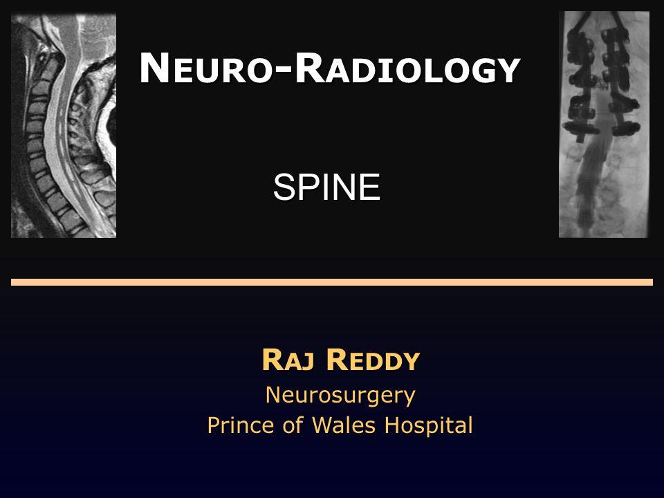 N EURO -R ADIOLOGY R AJ R EDDY Neurosurgery Prince of Wales Hospital SPINE