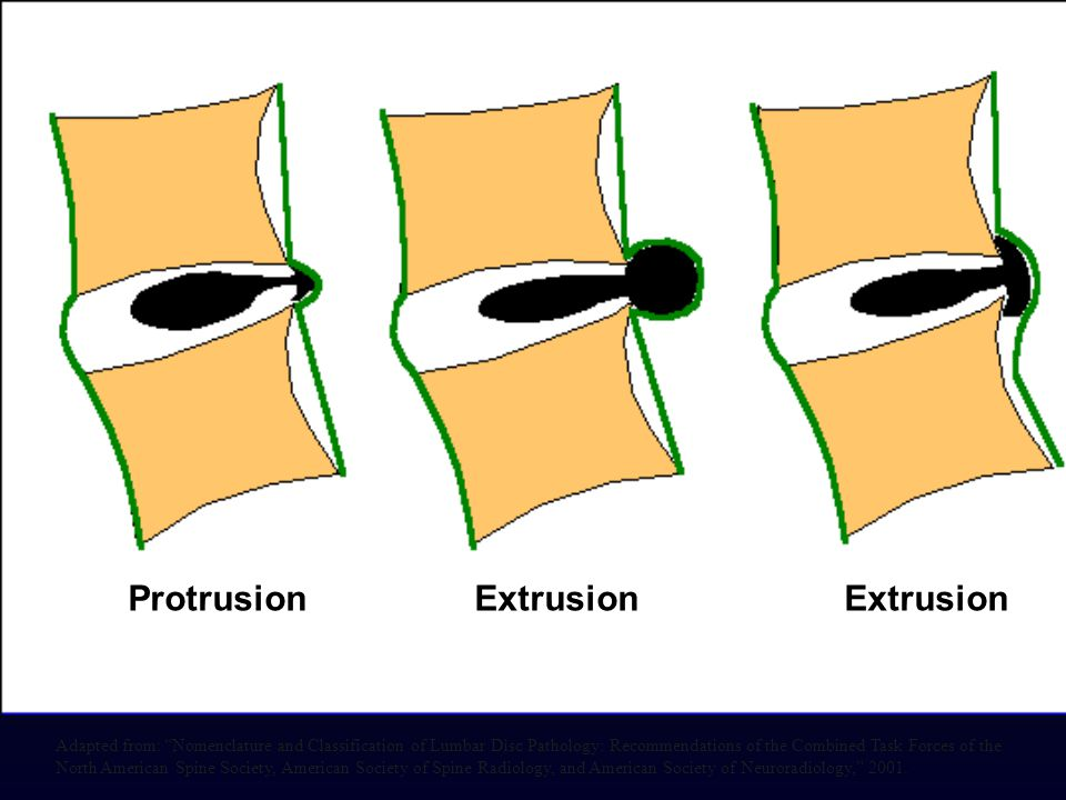 """Protrusion Extrusion Extrusion Adapted from: """"Nomenclature and Classification of Lumbar Disc Pathology: Recommendations of the Combined Task Forces of"""