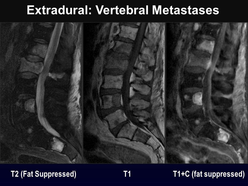 Extradural: Vertebral Metastases T2 (Fat Suppressed) T1 T1+C (fat suppressed)