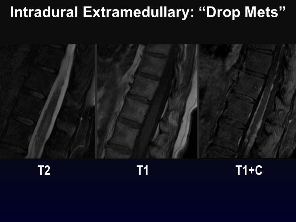 "Intradural Extramedullary: ""Drop Mets"" T2 T1 T1+C"