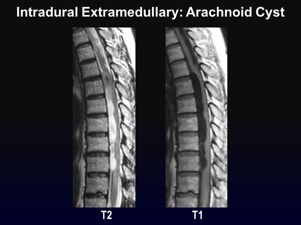 Intradural Extramedullary: Arachnoid Cyst T2 T1