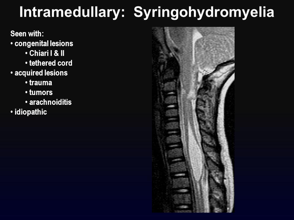 Seen with: congenital lesions Chiari I & II tethered cord acquired lesions trauma tumors arachnoiditis idiopathic Intramedullary: Syringohydromyelia