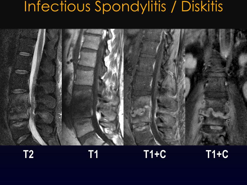 Infectious Spondylitis / Diskitis T2 T1 T1+C T1+C