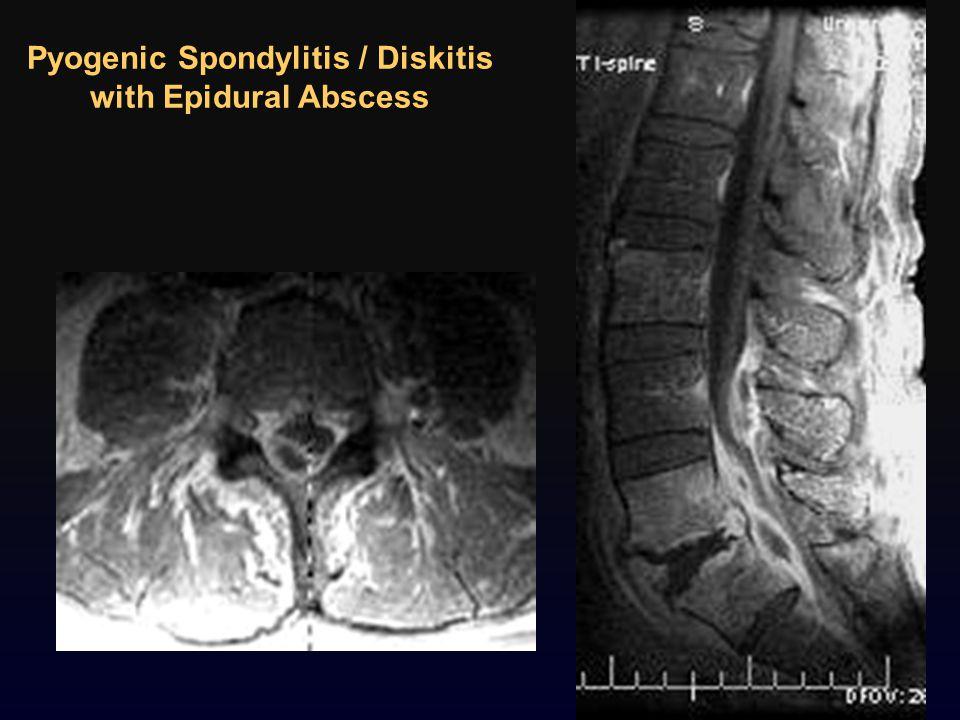 Pyogenic Spondylitis / Diskitis with Epidural Abscess