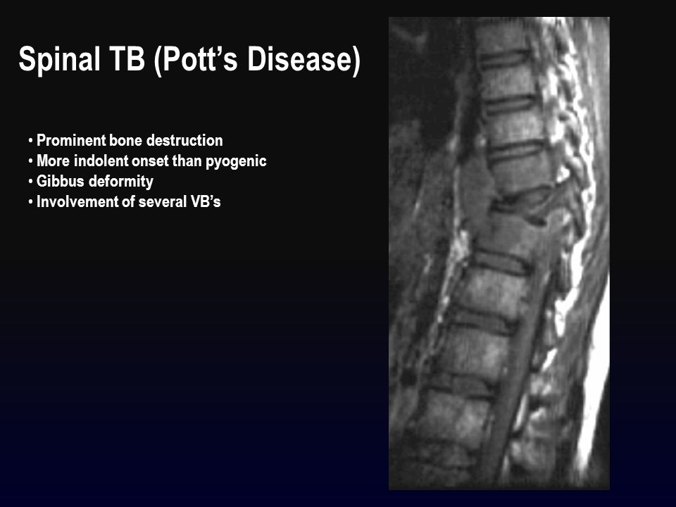 Spinal TB (Pott's Disease) Prominent bone destruction More indolent onset than pyogenic Gibbus deformity Involvement of several VB's