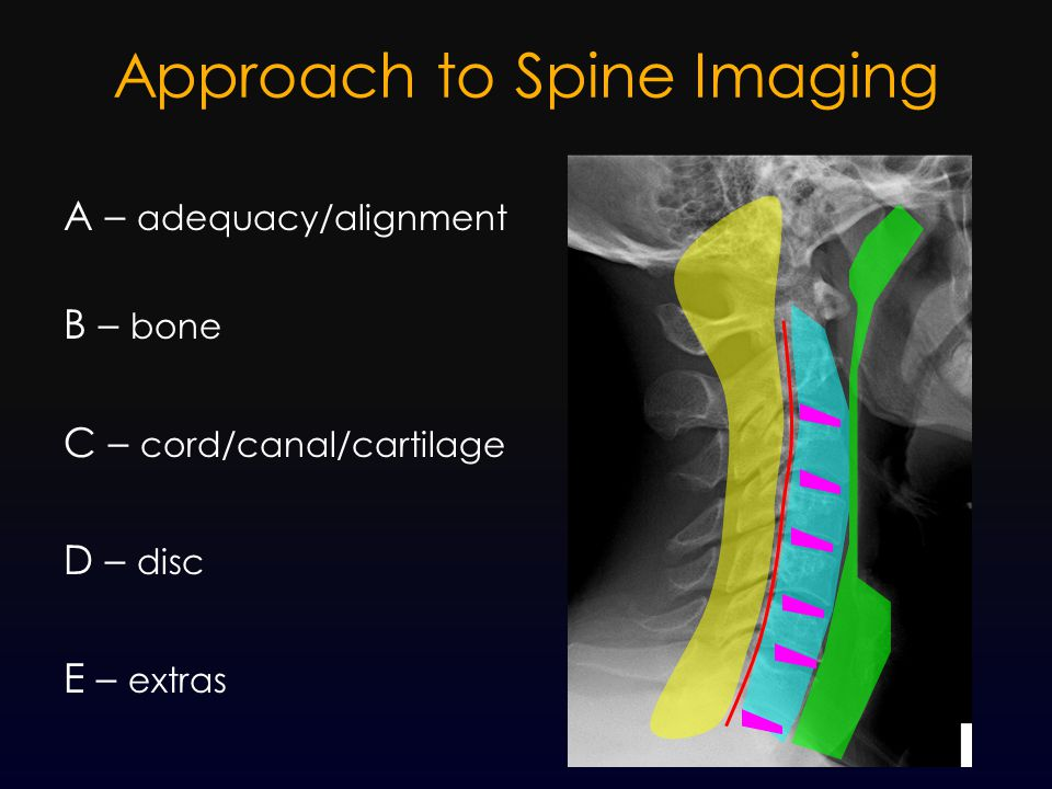 Approach to Spine Imaging A – adequacy/alignment B – bone C – cord/canal/cartilage D – disc E – extras