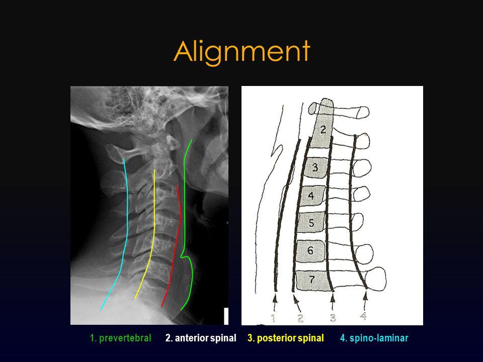Alignment 1. prevertebral2. anterior spinal3. posterior spinal4. spino-laminar