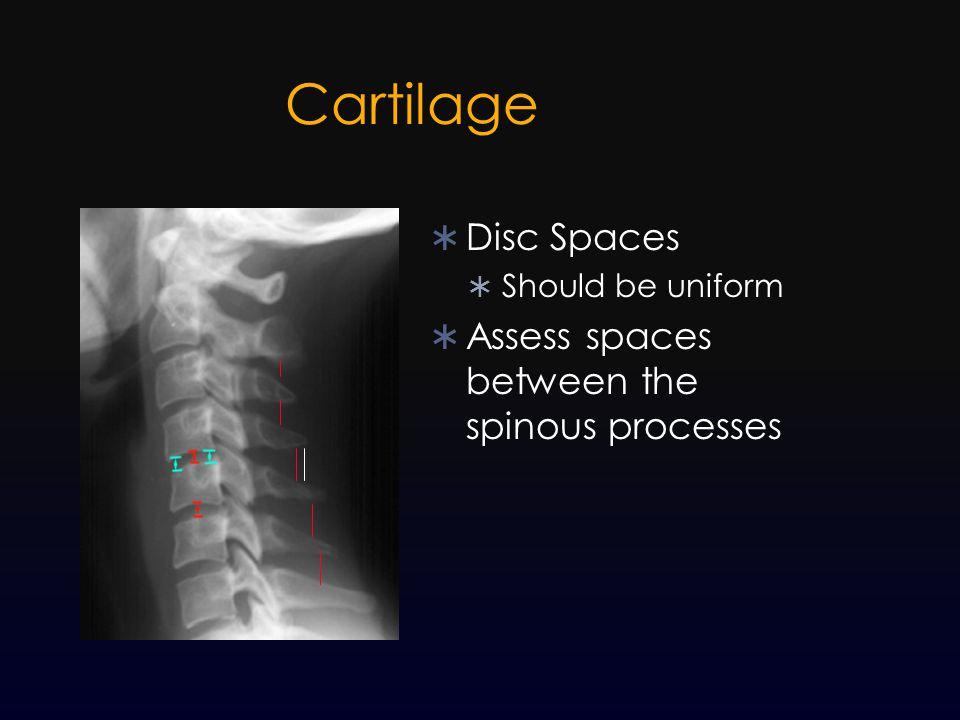 Cartilage  Disc Spaces  Should be uniform  Assess spaces between the spinous processes
