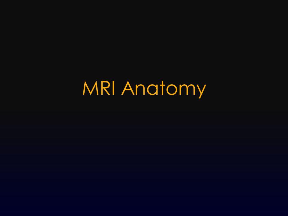 MRI Anatomy