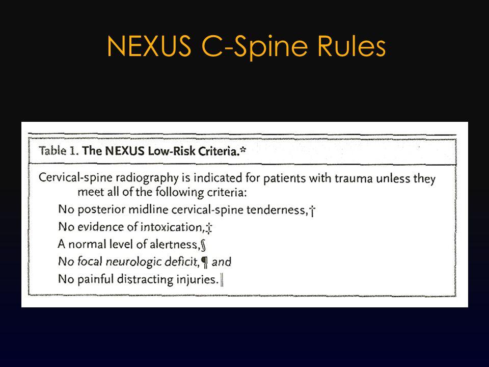NEXUS C-Spine Rules