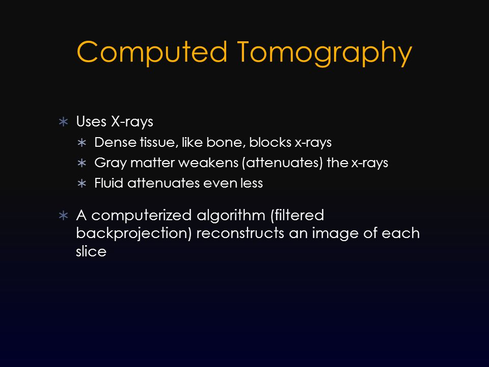 Computed Tomography  Uses X-rays  Dense tissue, like bone, blocks x-rays  Gray matter weakens (attenuates) the x-rays  Fluid attenuates even less