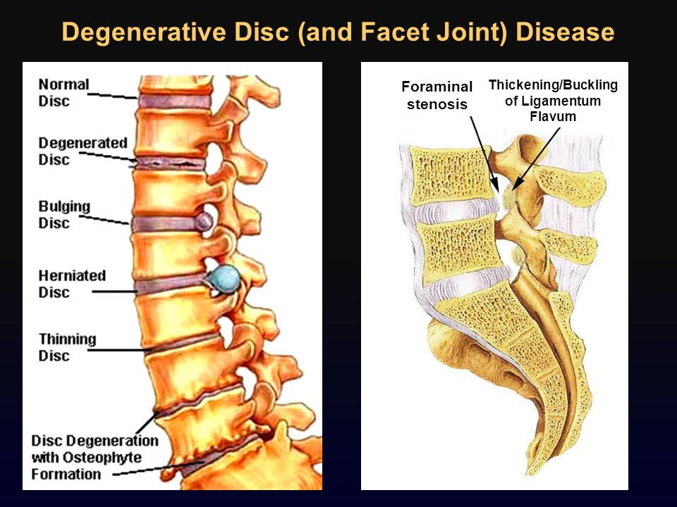 Degenerative Disc (and Facet Joint) Disease Foraminal stenosis Thickening/Buckling of Ligamentum Flavum