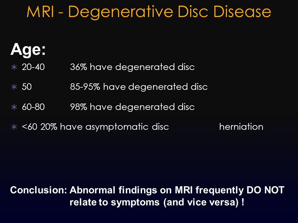 MRI - Degenerative Disc Disease  20-4036% have degenerated disc  5085-95% have degenerated disc  60-8098% have degenerated disc  <6020% have asymp