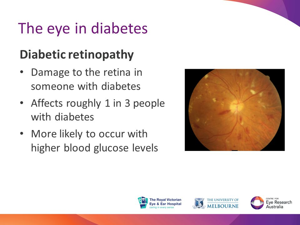 The eye in diabetes Diabetic retinopathy Damage to the retina in someone with diabetes Affects roughly 1 in 3 people with diabetes More likely to occur with higher blood glucose levels