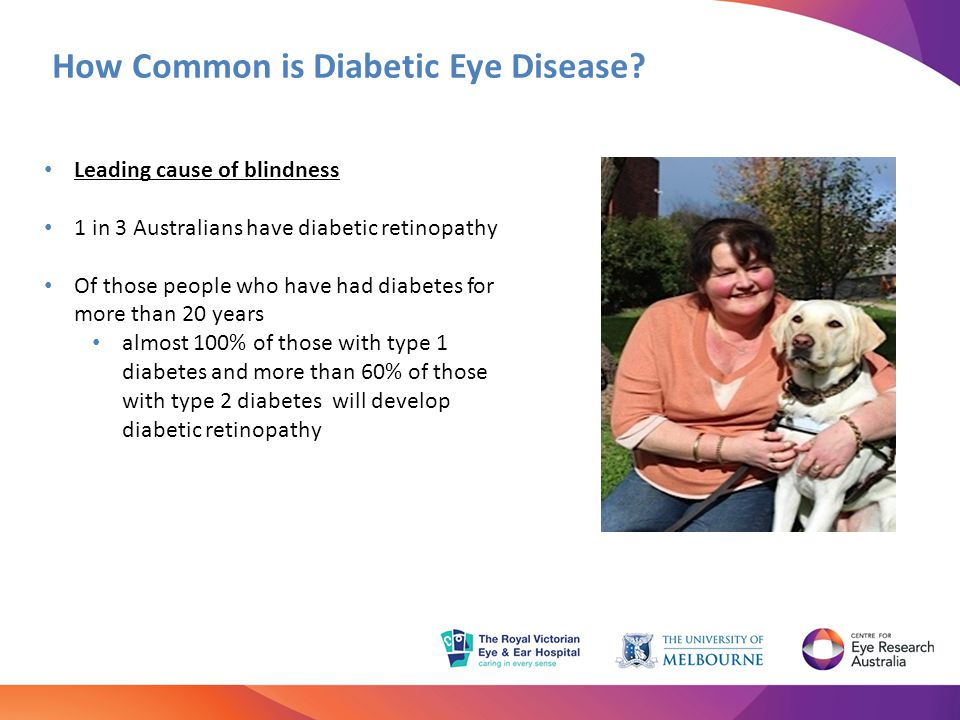 How Common is Diabetic Eye Disease? Leading cause of blindness 1 in 3 Australians have diabetic retinopathy Of those people who have had diabetes for