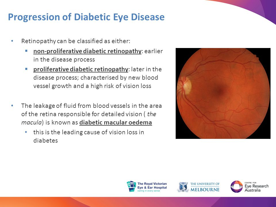 Progression of Diabetic Eye Disease Retinopathy can be classified as either:  non-proliferative diabetic retinopathy: earlier in the disease process