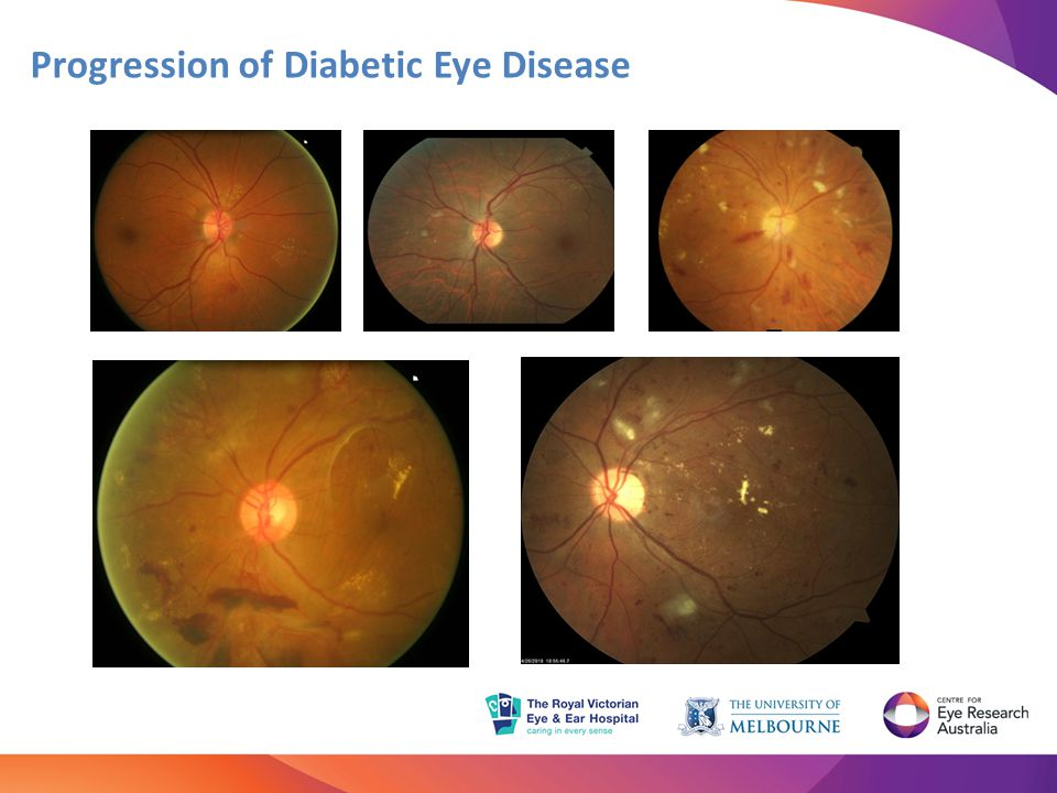 Diabetic retinopathy may progress to advanced stages without any symptoms Regular eye tests and timely treatment are essential for people with diabetes