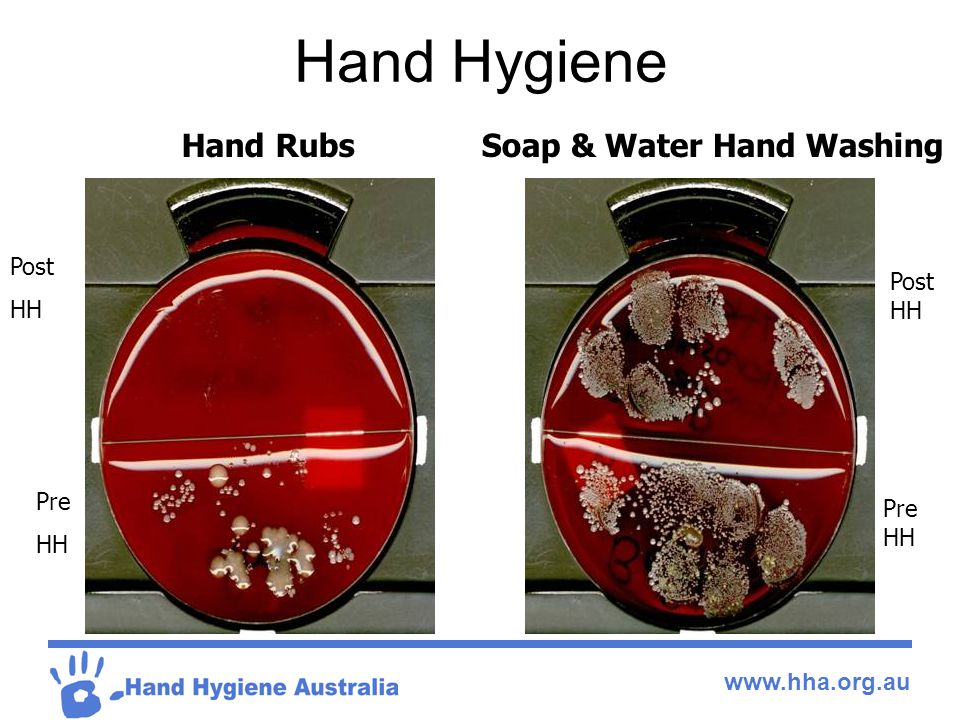 Hand Hygiene Pre HH Post HH Post HH Pre HH Hand RubsSoap & Water Hand Washing