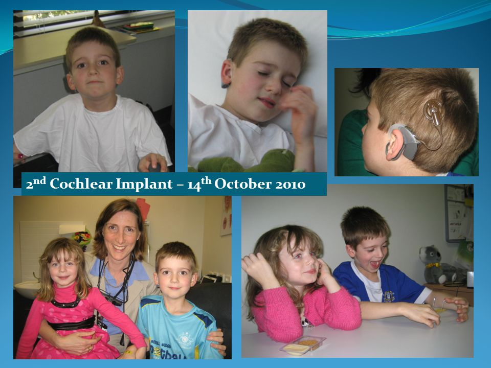 2 nd Cochlear Implant – 14 th October 2010