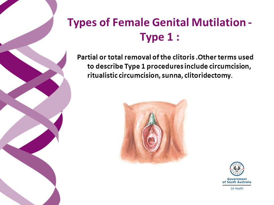Partial or total removal of the clitoris.Other terms used to describe Type 1 procedures include circumcision, ritualistic circumcision, sunna, clitoridectomy.